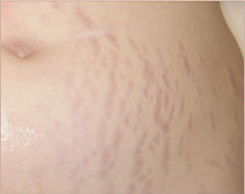 <strong>Stretch Mark Reduction</strong>