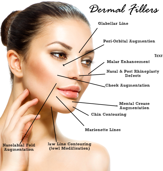 dermal fillers injectables