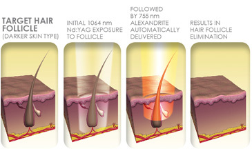 elite multiplex laser hair removal